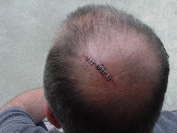 Tony's head wound 2 Nov 2003.JPG